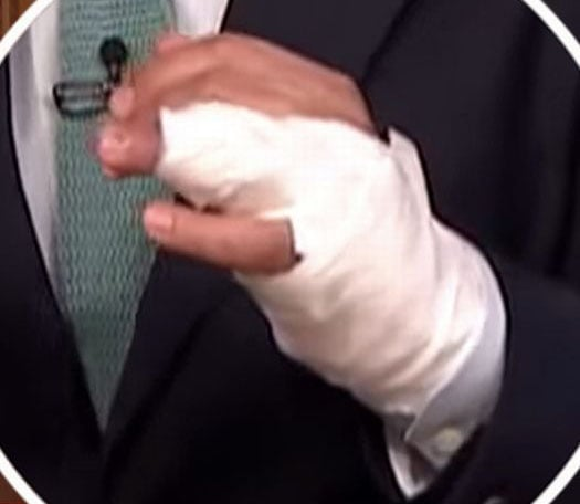 Who's hand is this?